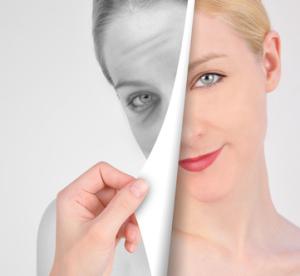 Eine Möglichkeit zur Behandlung von sehr kleinen Falten ist die Hautverjüngung mit Xenonlicht.